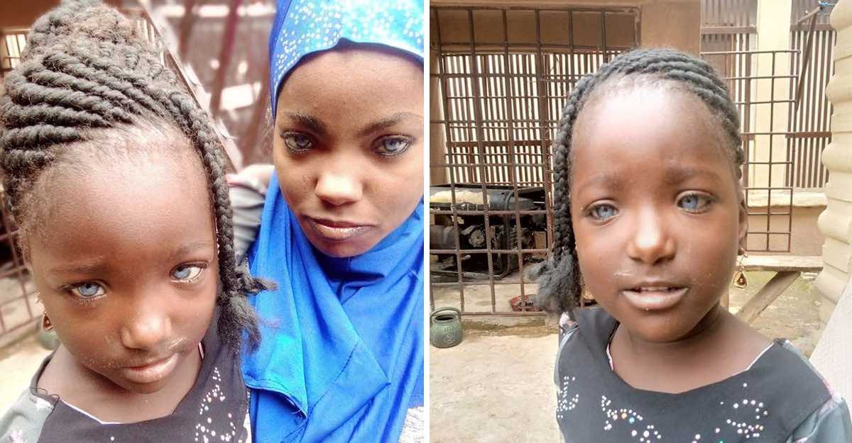 """Marido africano abandona esposa e filhas por causa de seus """"estranhos olhos"""" azuis. Eles são de uma rara beleza!"""