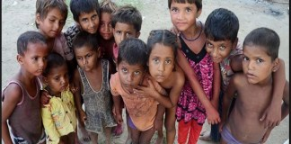 UP 96 thousand malnourished children in Kushinagar rural and urban areas