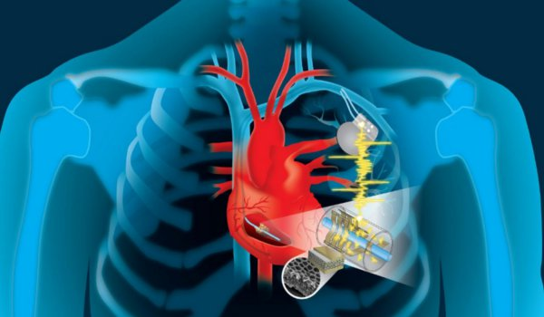 A Pacemaker Powered By The Beating Heart