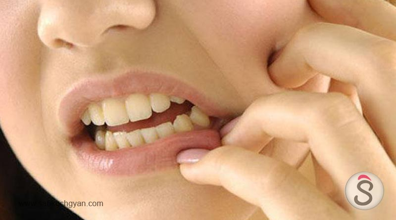 Relax on mouth ulcers, with these effective and easy remedies1