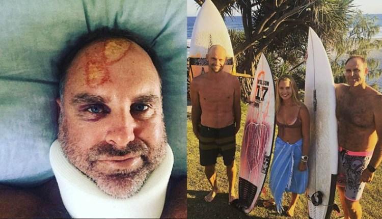 hayden accident in surfing (3)