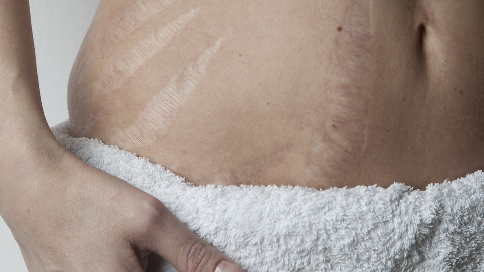 Take some effective home remedies to remove stretch marks.