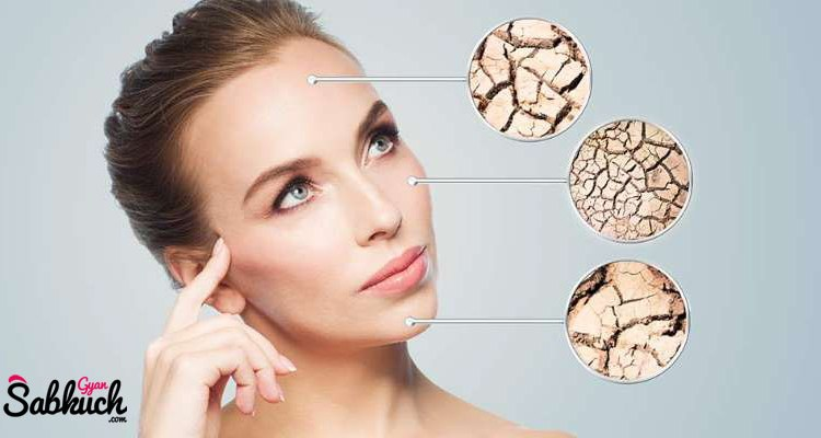 Due to these mistakes, your skin may become Dry in winter season, know 3 important reasons