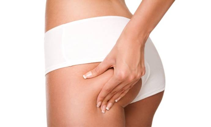 How to Get Rid Of Dimples on Buttocks