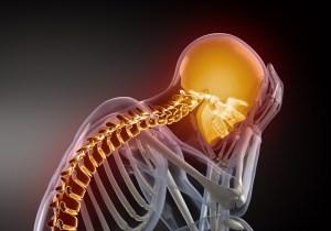 Head injury settlement