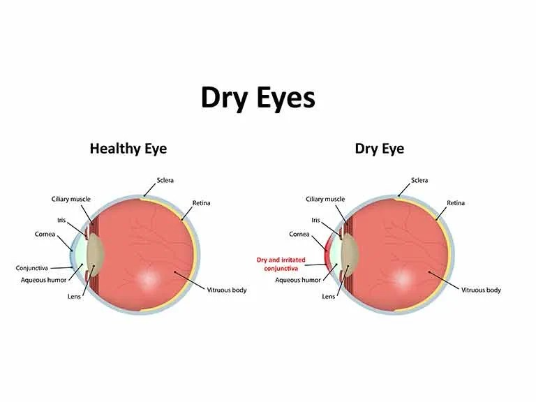 Treatments for dry eyes  Saga