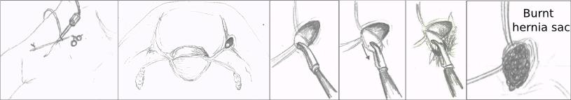 ped inguinal hernia 2