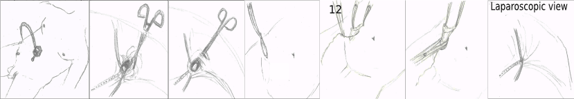 ped inguinal hernia 20