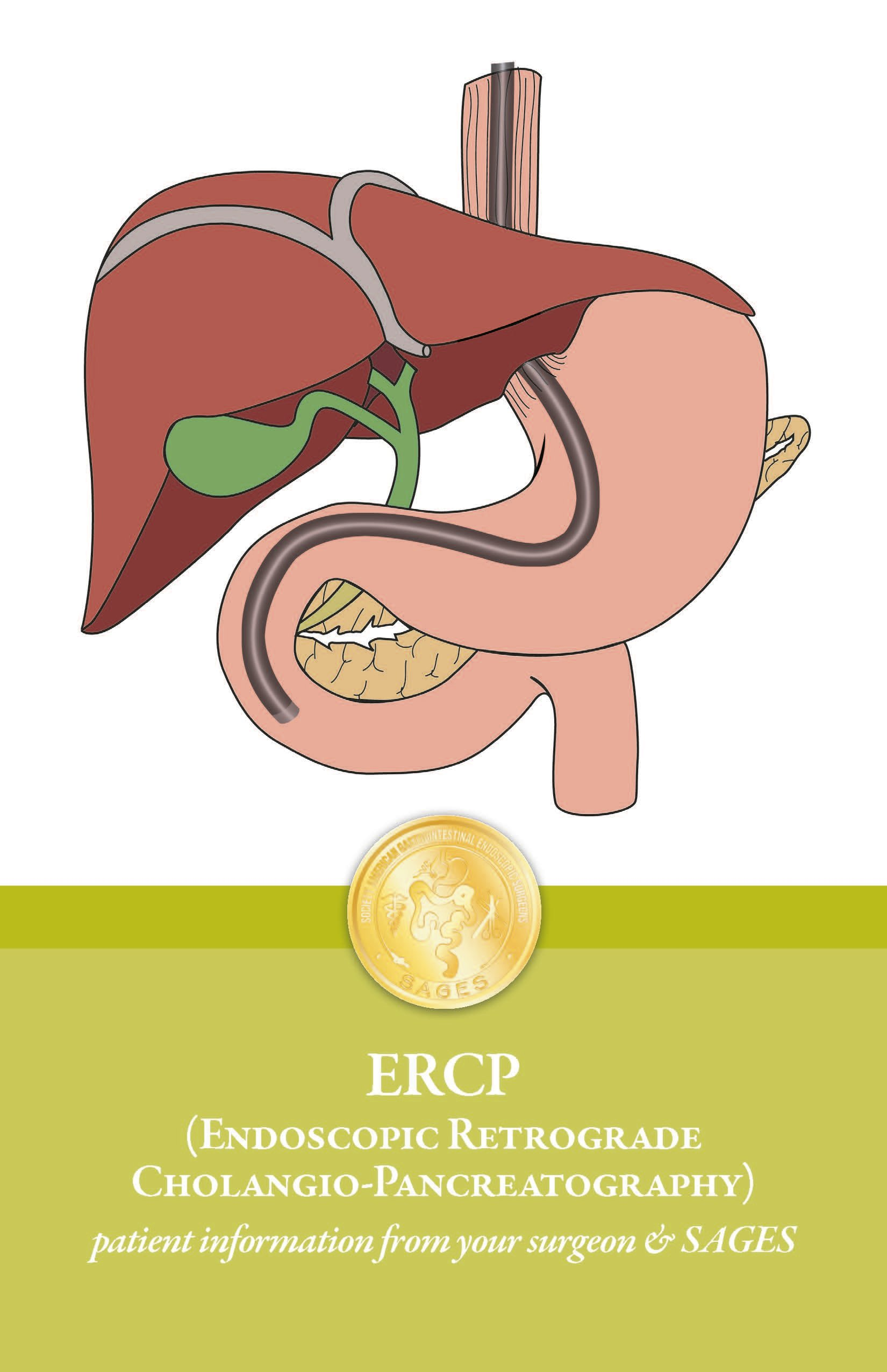 ERCP (Endoscopic Retrograde Cholangio-Pancreatography
