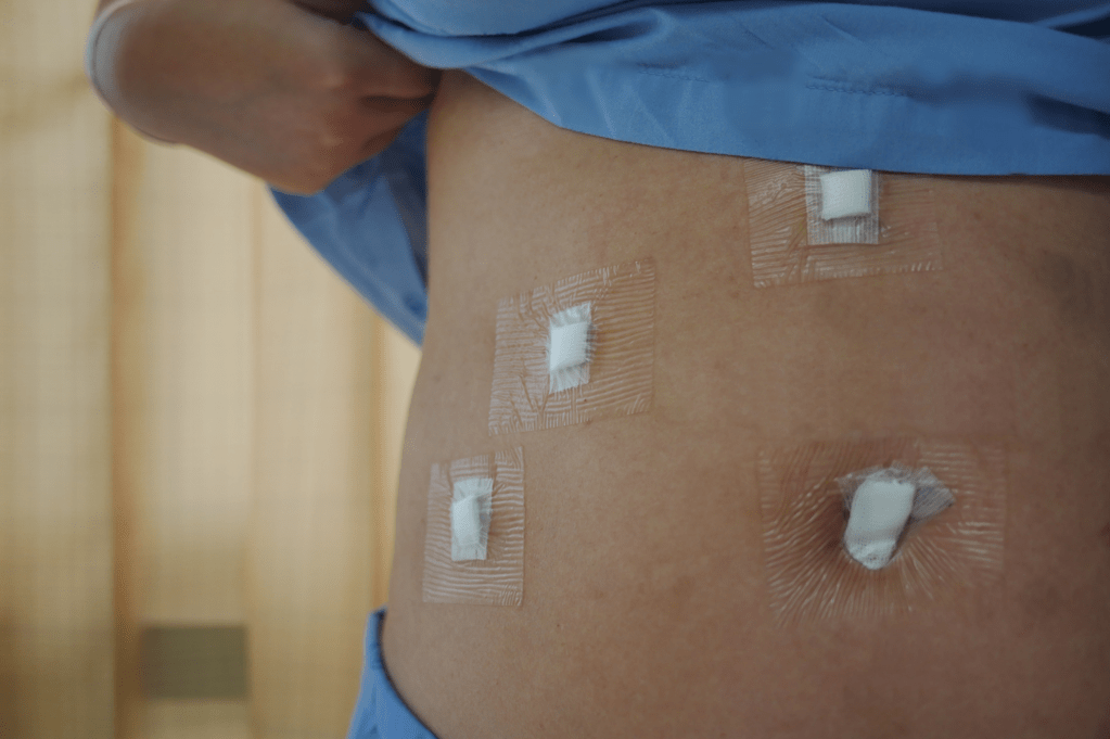 Incisions after minimally invasive (laparoscopic) surgery