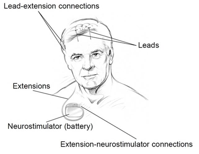 MedtronicDBSSystemforEpilepsy