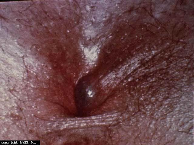 Thrombosed External Hemorrhoid