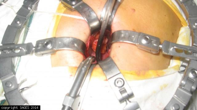 mini-laparotomy