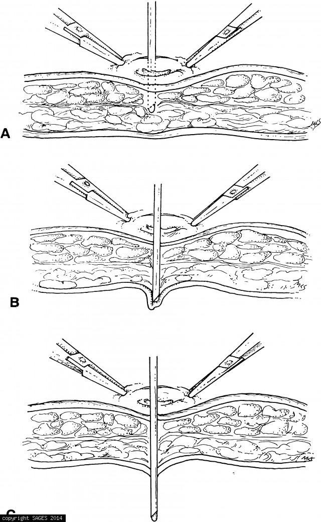 Veress needle
