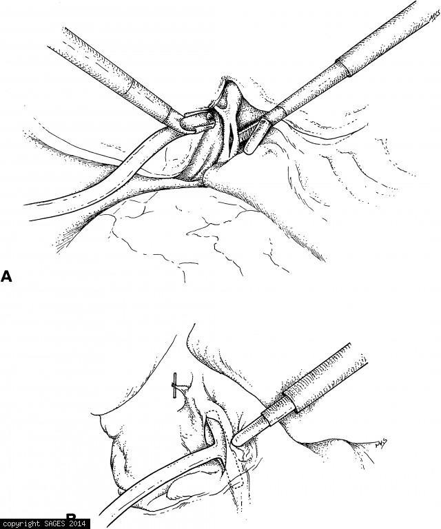 CBD Exploration via Laparoscopic Choledochotomy