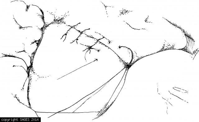 Completed sutured laparoscopic