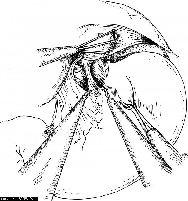 Initial dissection of the esophageal hiatus