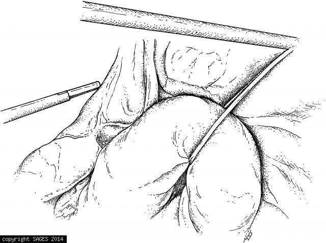 Sling retraction of the stomach