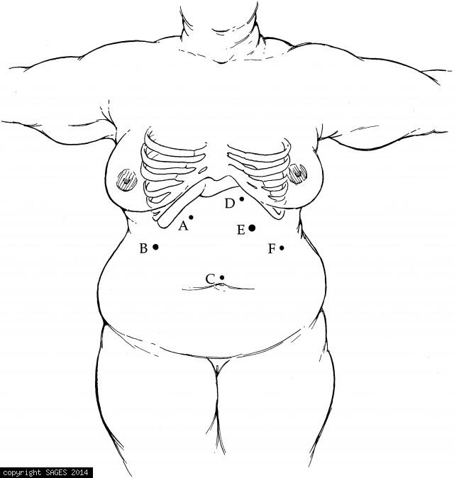 Port Placement for Gastric Bypass