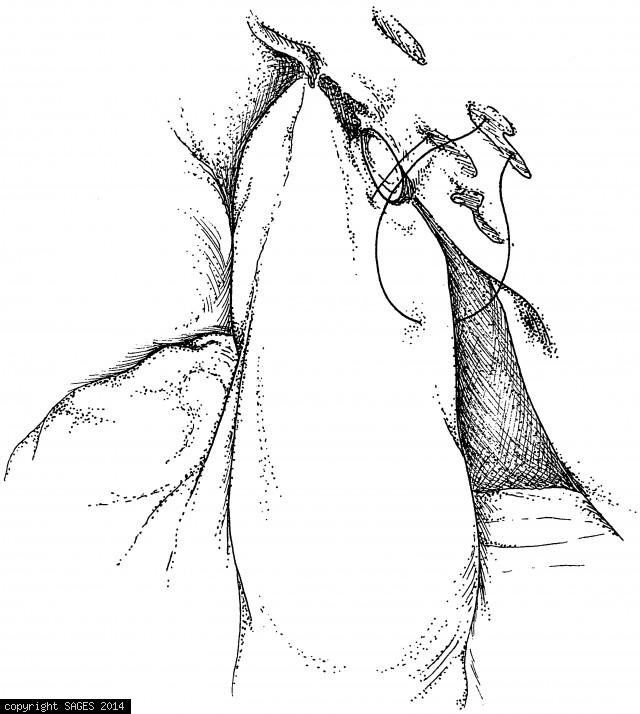 Passing the Silastic feeding jejunostomy tube