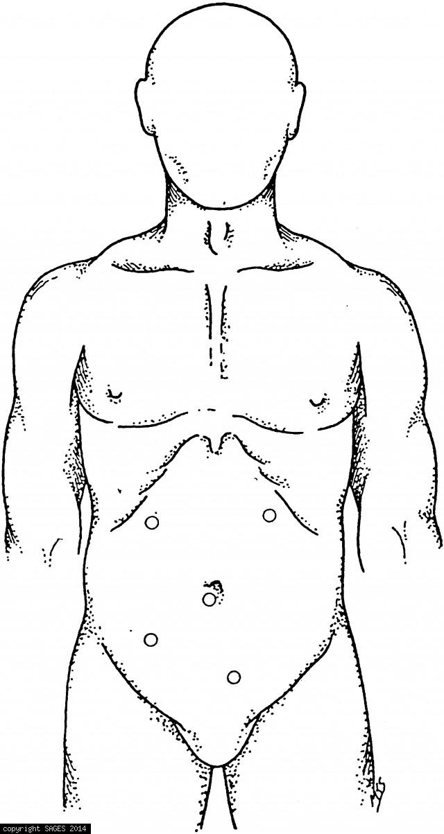 Suggested port sites for proctocolectomy