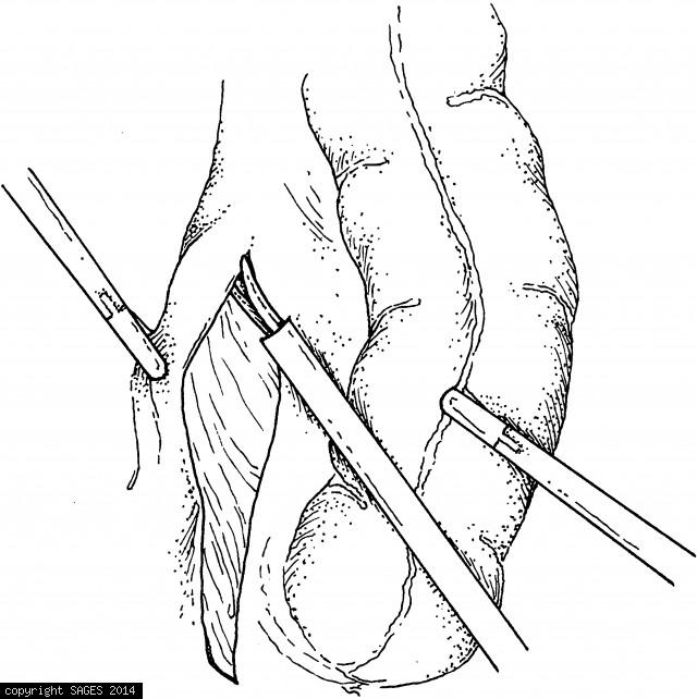 Retracting the peritoneum laterally