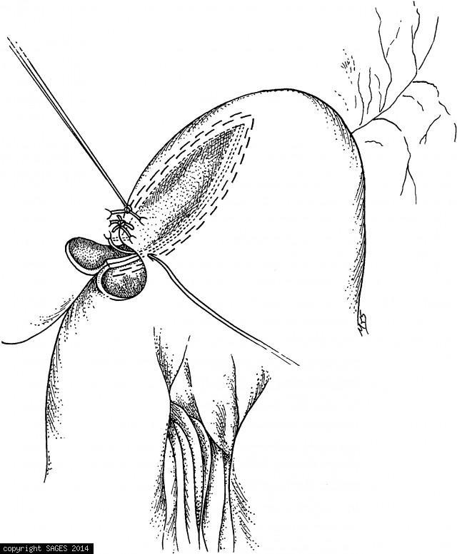 Firing and Removing the Stapler