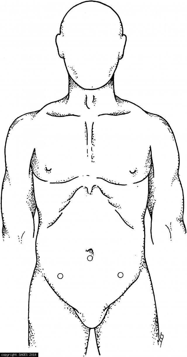 Trocar placement for transperitoneal iliac node