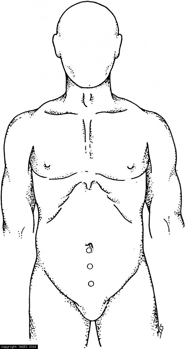 Trocar placement for preperitoneal node biopsy