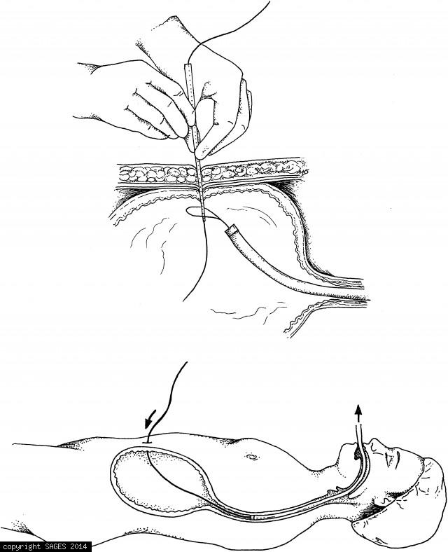 Braided suture snared by the endoscopist