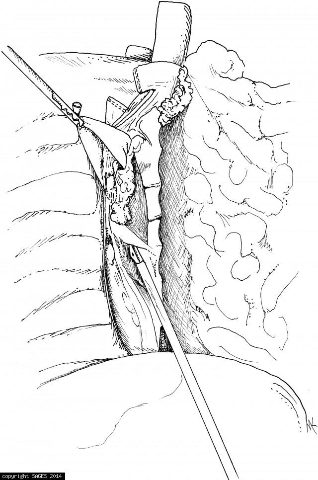 Esophageal mobilization