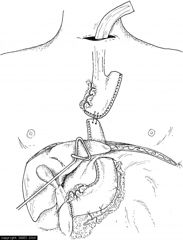 Mobilization of the gastric tube