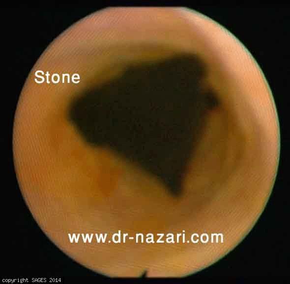 Common bile duct stone