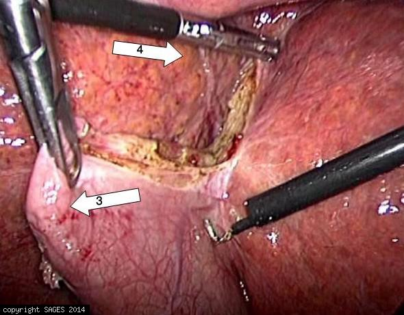 Fundus-down Laparoscopic Cholecystectomy