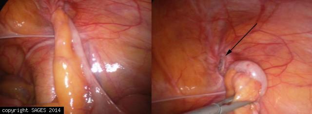 Appendix in hernia sac