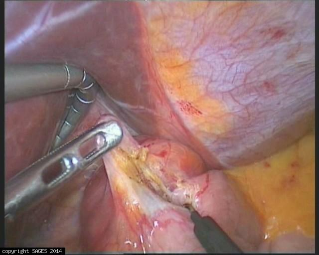 Gastroesophageal Junction GIST tumor