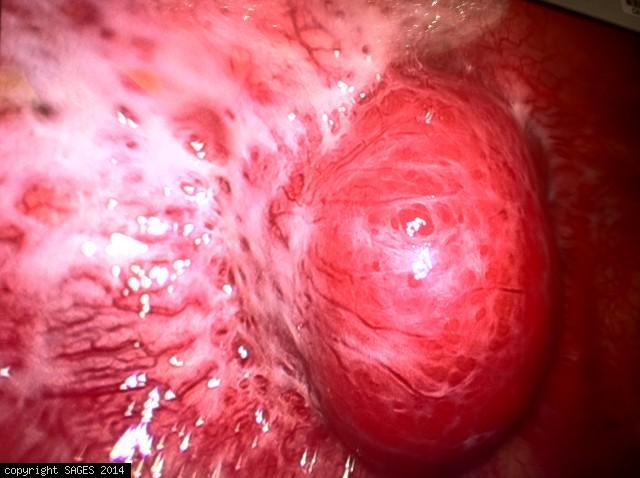 Neurogenic tumor (Post. mediastinum)