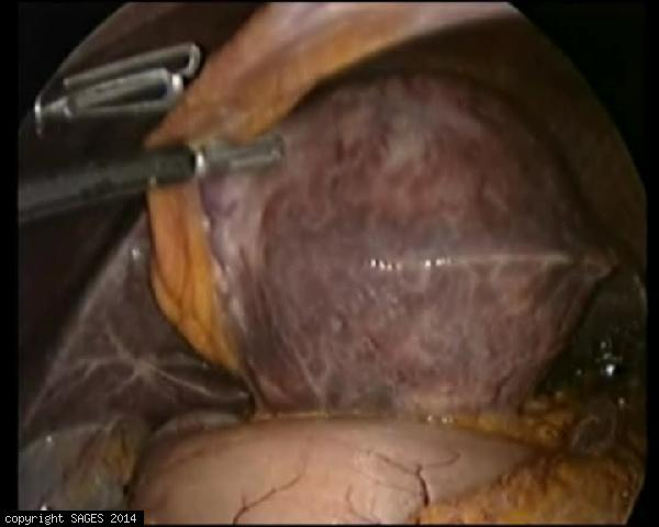 Laparoscopic left hepatectomy for Hepatoma 9 cm  in  left liver