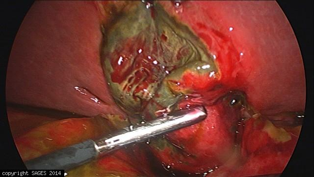 Gangrenous Cholcystitis