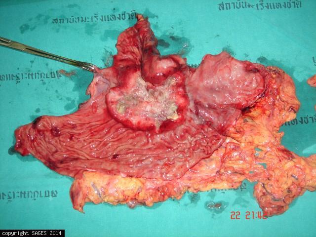 Advanced Gastric Cancer Specimen via Total Laparoscopic Gastrectomy