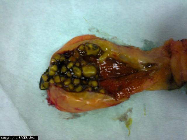 Typical Mixed Gallstones