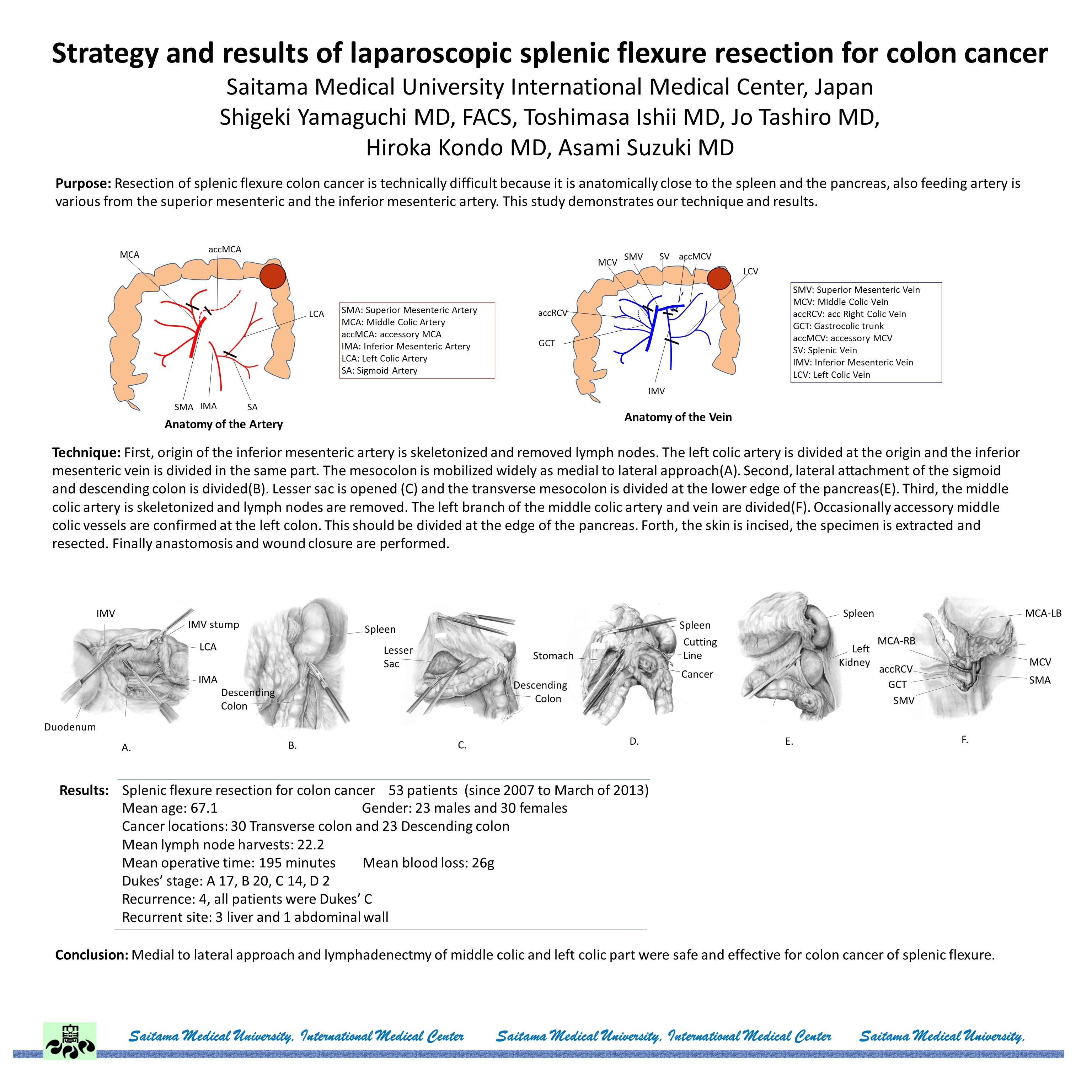 Strategy and results of laparoscopic splenic flexure resection for ...
