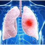 Akciğer Temizleyen Kür