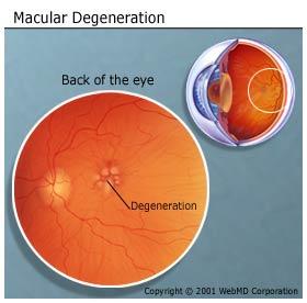 understanding-macular-degeneration-basics_macular-degeneration