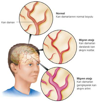 ibrahim saraçoğlu migren tedavisi