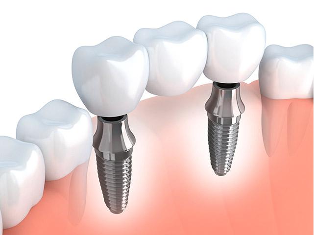 Diş İmplantı Nasıl Yapılır?