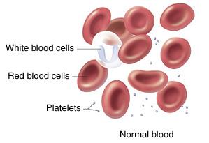 Kan kanseri nasıl tedavi edilir?