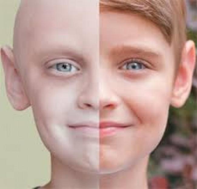 İlik Kanseri Belirtileri Nelerdir?
