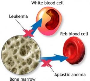 Kemik İliği Kanseri Nedir?