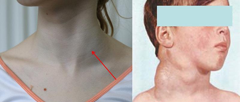 Hastalık Tanısı Konulduktan Sonra Lenfoma Tedavisi Ne Kadar Sürer?